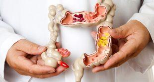 İnflamatuar Bağırsak Hastalıkları (İBH) tedavisi