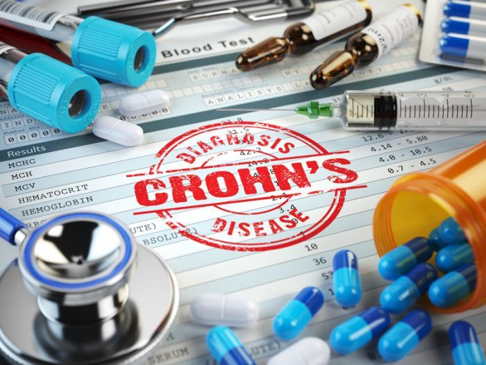 Photo of Crohn hastalığının keşfedilen iki alt türü daha iyi tedavilere yol açabilir