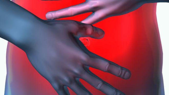 Photo of Crohn Hastalığı için Kabızlık Tedavileri