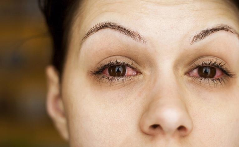 Photo of IBH'de göz problemleri: Crohn hastalığı ve ülseratif kolit
