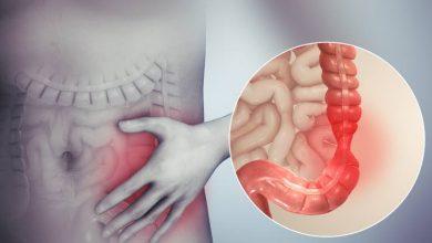 Photo of Glutamin, obezite bağlantılı inflamasyonu azaltabilir